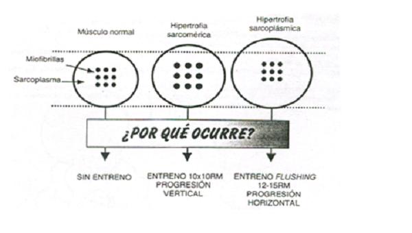 Diferencias entre hipertrofia sarcomérica y sarcoplásmica