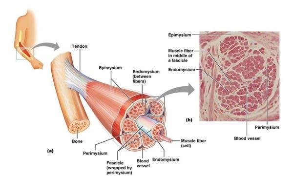 tendon tendinitis