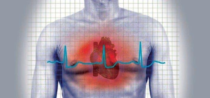 Cardiomiopatía