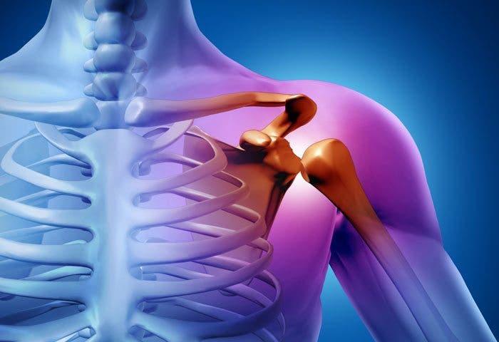 Tendinitis de biceps y hombros