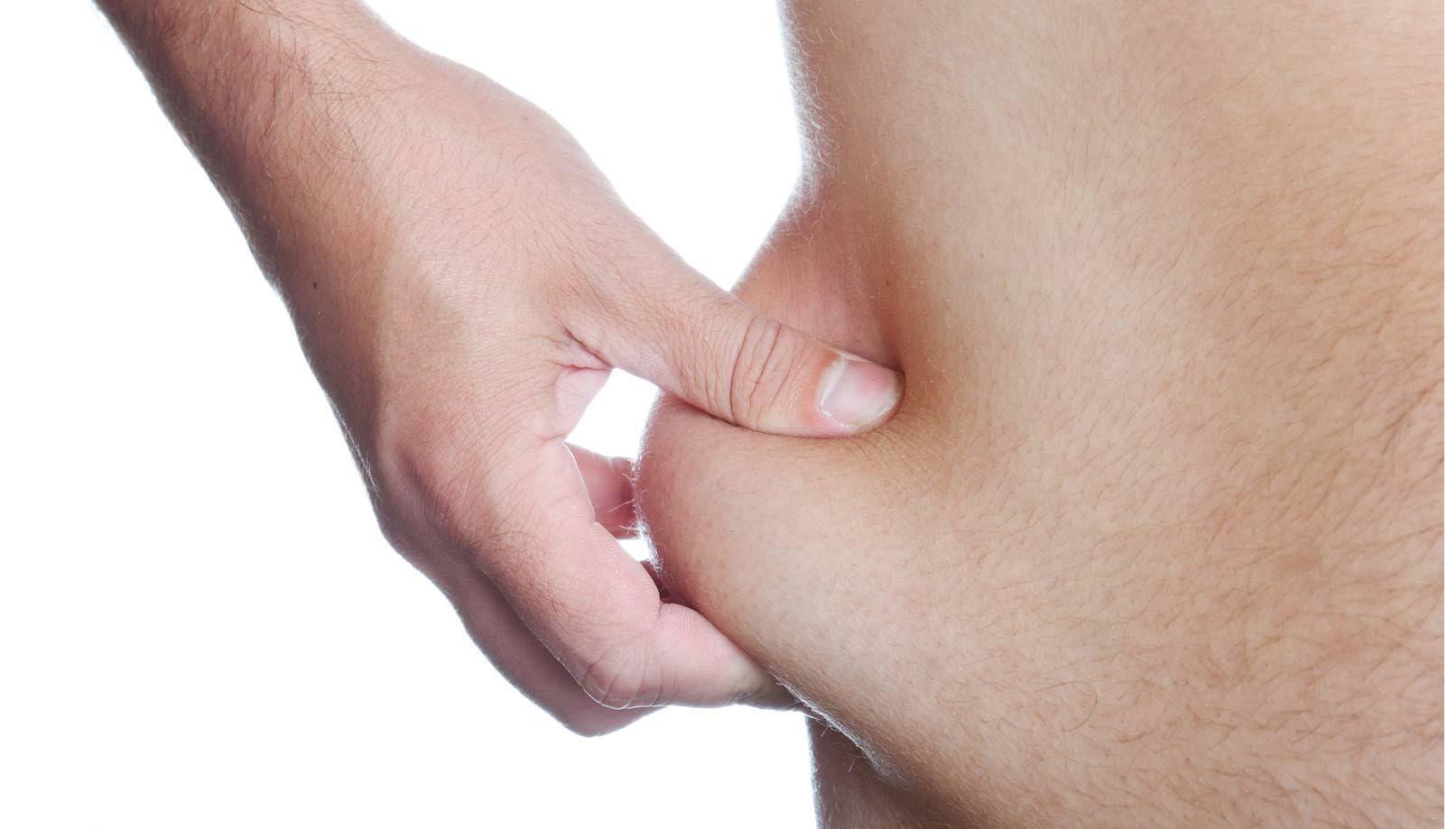 Debes deshacerte de la piel suelta para lucir tu cuerpo