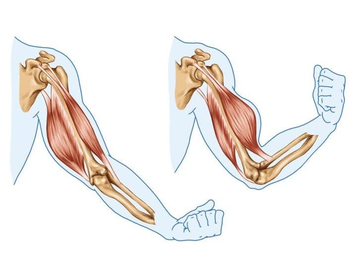 Evita el dolor con 2 sencillos estiramientos de tríceps