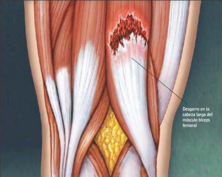 desgarro muscular por electroestimulación