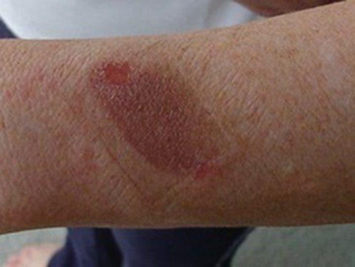 piel irritada por electroestimulación