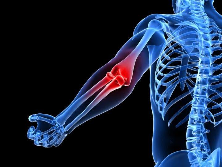 Lesiones frecuentes del gimnasio