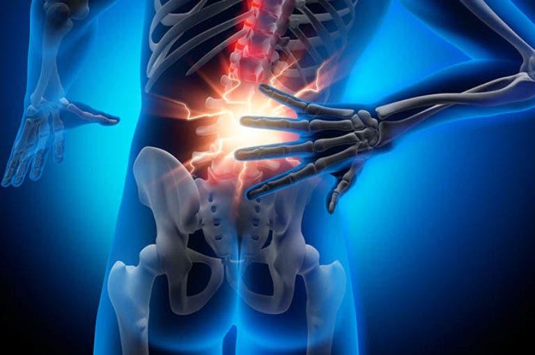 Como bajar de peso si tengo hernia discal