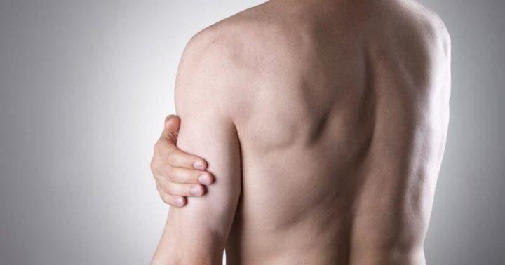 Prevenir la tendinitis de bíceps