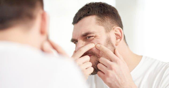 Tratamientos naturales para eliminar el acné