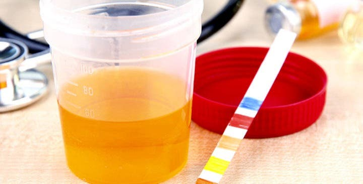 Tiras de orina y sangre para determinar la cetosis