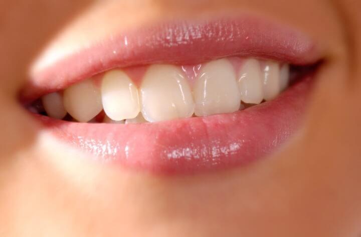 Viabilidad de los sensores dentales rastreadores de alimentos