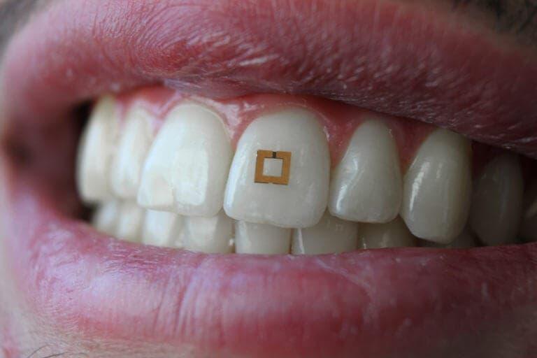 ¿Puedes adelgazar con los sensores dentales?