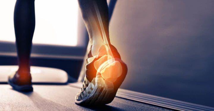 Mejores suplementos para fortalecer los huesos