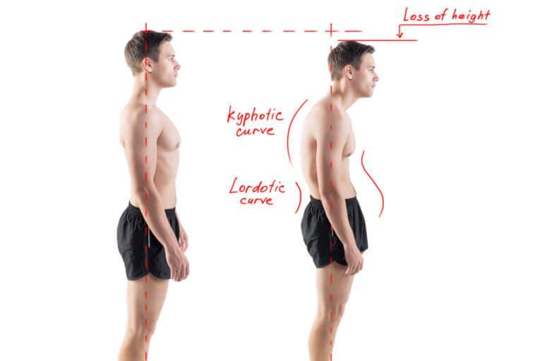 Las zonas del cuerpo que pueden ser afectadas por la mala postura