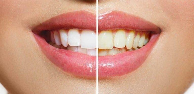¿Cómo blanquear tus dientes en casa?