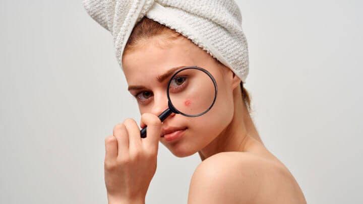 ¿Como puede la biotina provocar el acné?
