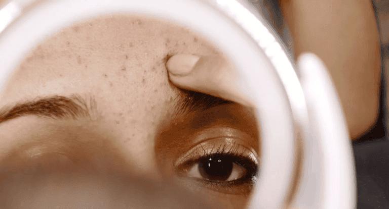 ¿Cómo usar la biotina para tratar el acné?