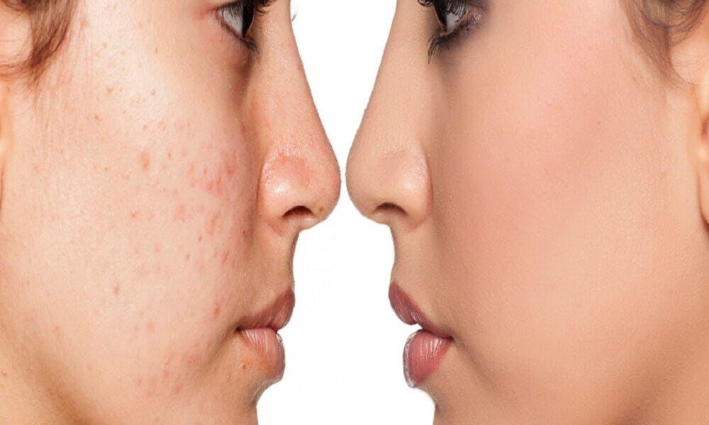 Cómo cuidar el microbioma de la piel
