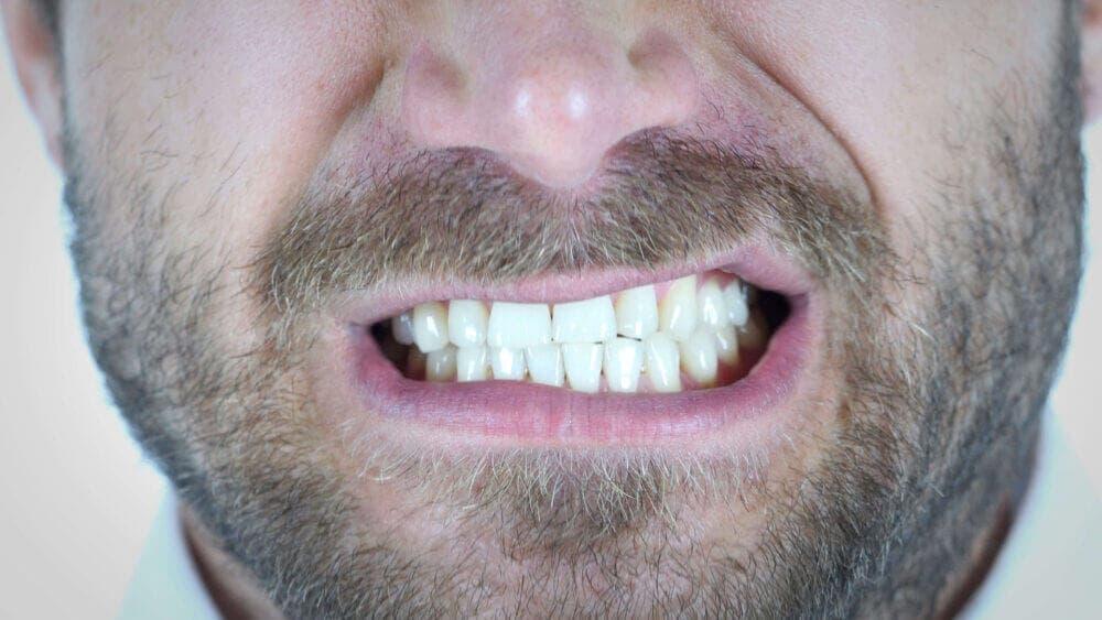 El rechinar los dientes puede ser muy malo para la salud