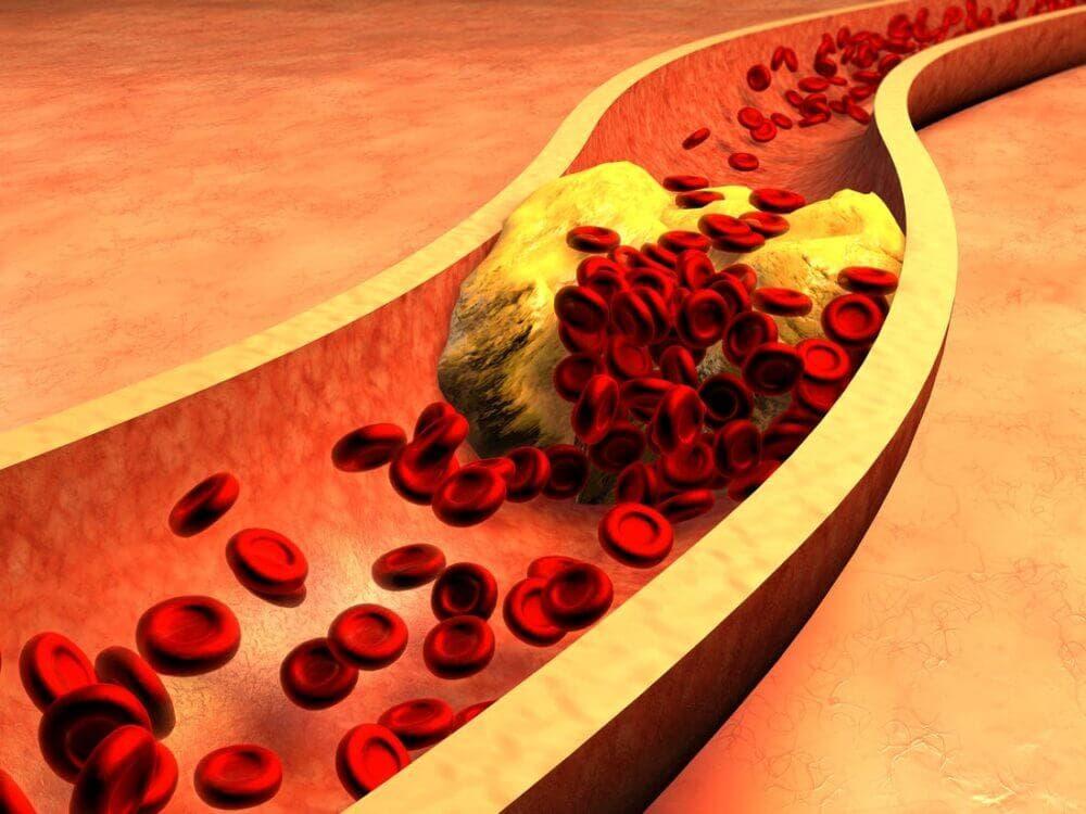 Cómo afecta el colesterol en nuestros cuerpos