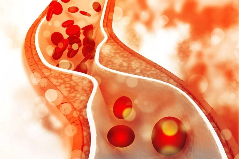 Debate entre el colesterol HDL vs LDL