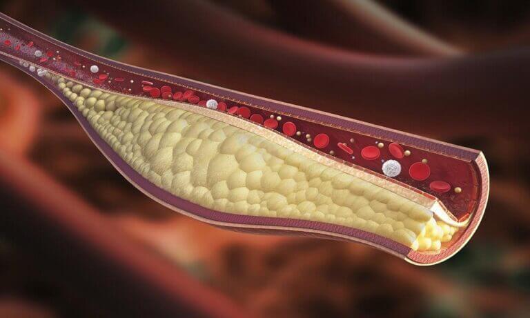 Diferencias entre los dos tipos de colesterol