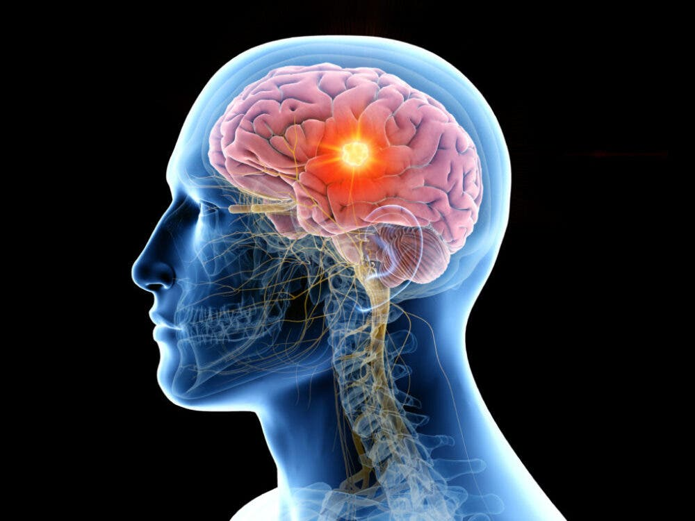 Así afecta a nuestro cerebro tener sobrepeso