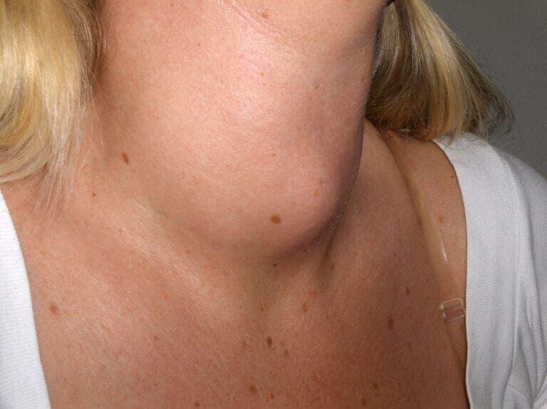 Diferencias entre hipotiroidismo e hipertiroidismo