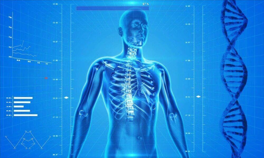 que es una calcificación ósea y como se puede prevenir o tratar