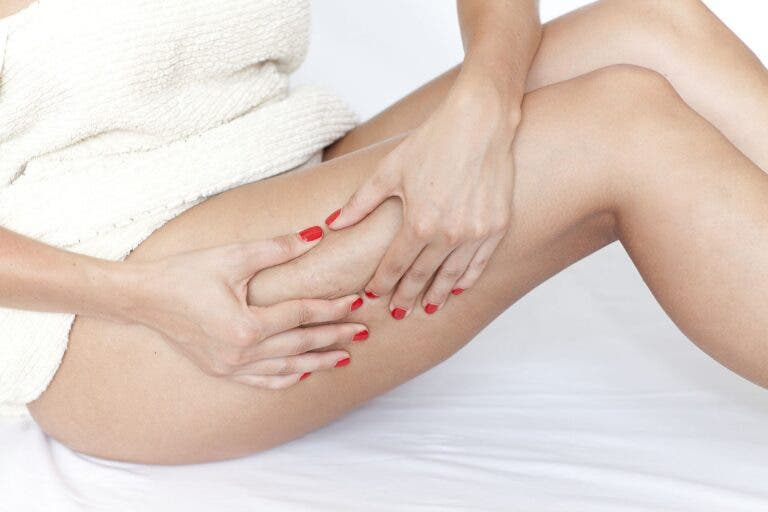 como evitar la celulitis con entrenamiento