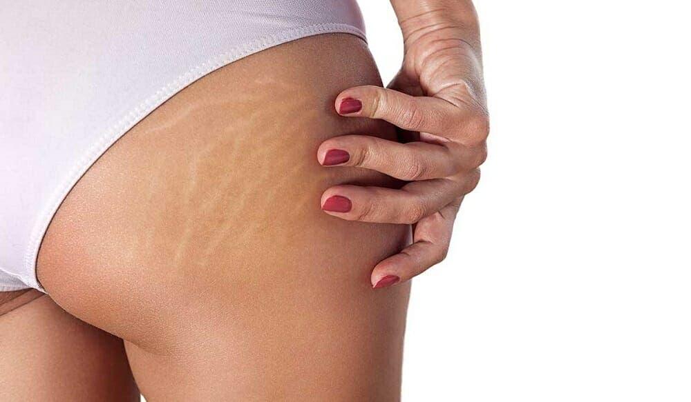 Maneras de evitar la aparición de estrías al ganar músculo