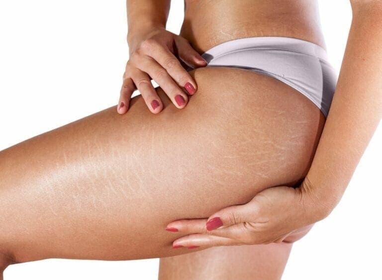 Cómo evitar la aparición de estrías al ganar músculo