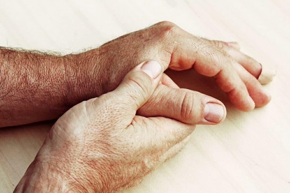tratamiento de la esclerodermia
