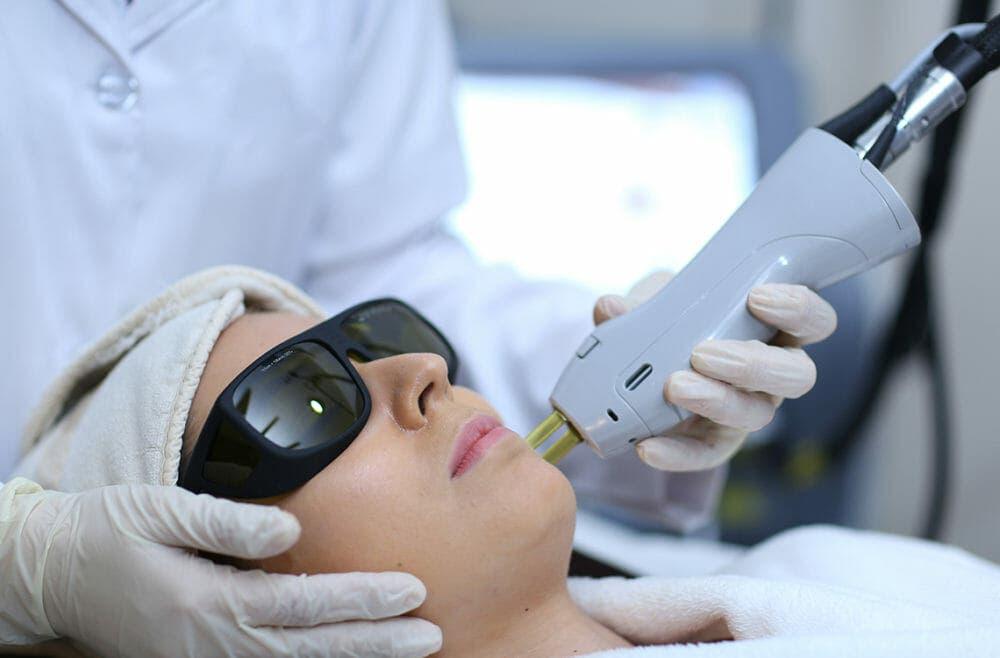 depilación laser definitiva